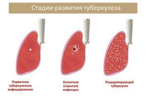 отличается рак от туберкулеза
