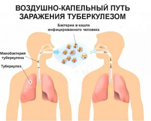 туберкулез сотрудника
