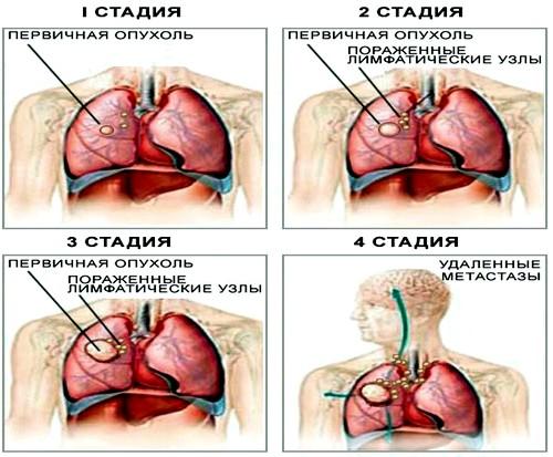 плоскоклеточный рак легких 3 стадия прогноз