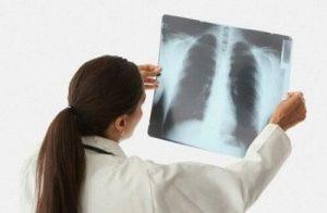 покажет ли флюорография воспаление легких