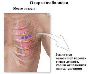 биопсия рака легких