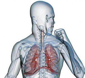 грипп пневмония симптомы