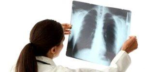 как умирает человек от туберкулеза