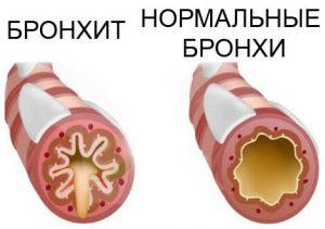 хронический пылевой бронхит