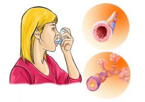 аллергический бронхит симптомы и лечение у детей