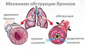 бронхит астма как лечить