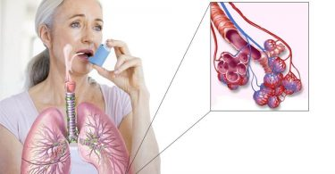 34277039-allergiya-astma-bronhi-lechenie-1