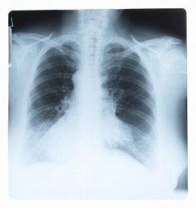 рак легких на рентгене