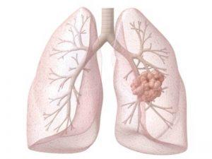 рак легких как болит