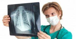рентген легких при пневмонии