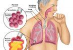 как заболеть пневмонией
