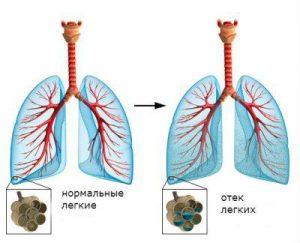 отек легких при сердечной недостаточности лечение