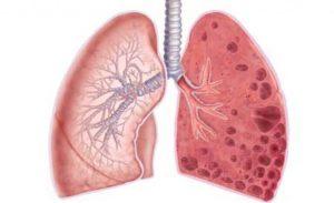 лечение эмфиземы легких и пневмосклероза