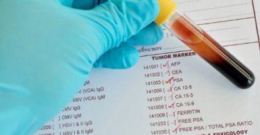 онкомаркер на рак легких