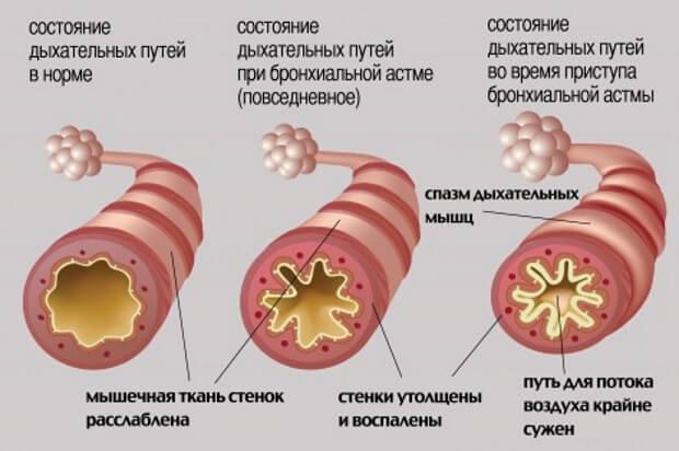 астма бронхоспазм