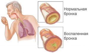 вирусный бронхит симптомы и лечение
