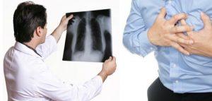 бронхоэктатическая болезнь легких лечение народными средствами