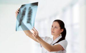 рентгенологические признаки туберкулеза легких