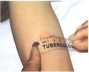 аллергия туберкулез