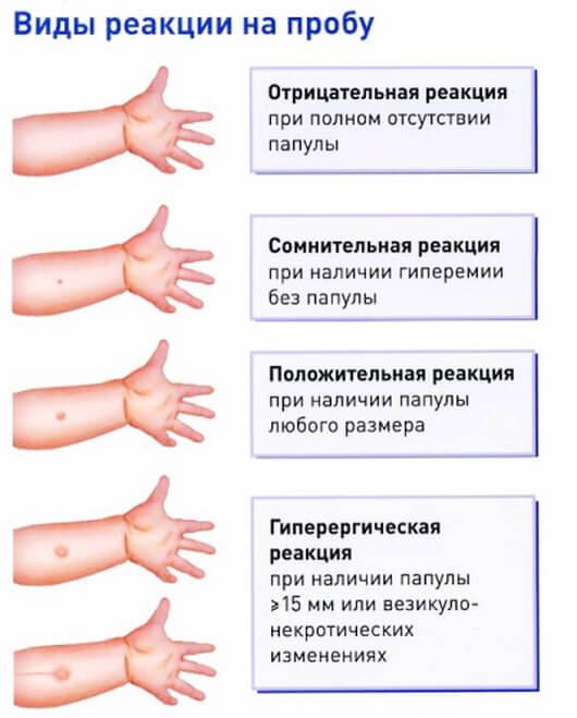 отрицательная манту туберкулезе