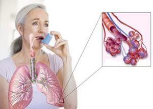 пневмония как аллергия