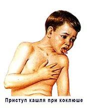 коклюш или пневмония