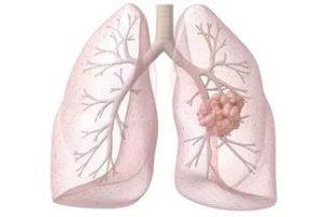 лечение рака легких содой