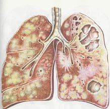 фиброзно кавернозный туберкулез легких