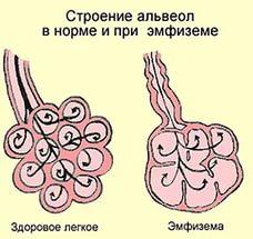 дыхательная гимнастика при эмфиземе