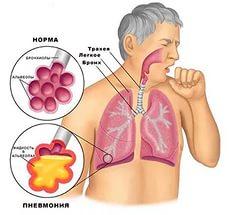 гипостатическая пневмония у пожилых
