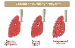 можно работать при туберкулезе