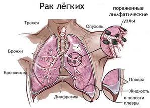 плоскоклеточный рак легкого рак
