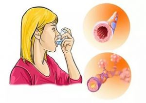 аллергия пневмонии