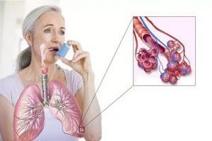 бронхиальная астма ринит