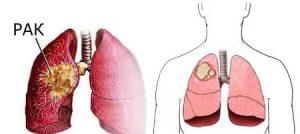 рак легких симптомы и признаки