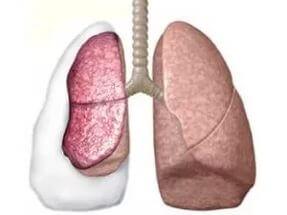 пункция плевральной полости при пневмотораксе