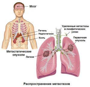 рак метастазами легкие прогноз на