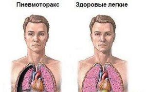 пункция при пневмотораксе