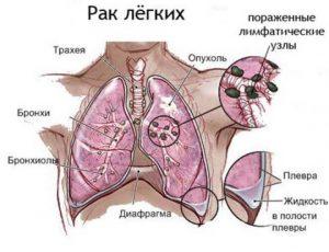 при раке легких что болит