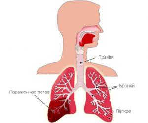 пневмония интерстициальная