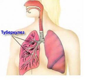 воспаление туберкулезе легких