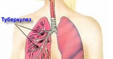 pulmonary-tuberculosis-1