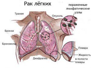 кашель при раке легких какой он