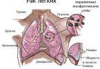 рак легких 4 стадия симптомы перед смертью