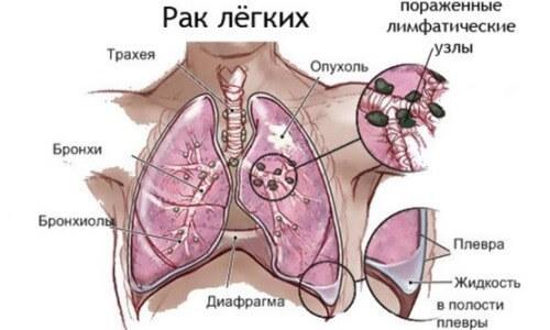 мелкоклеточный рак легкого