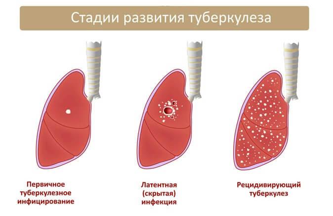 туберкулез симптомы первые симптомы