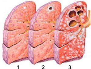 курить туберкулезе