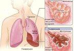 клинические рекомендации пневмония