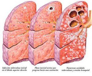 уход за больными туберкулезом