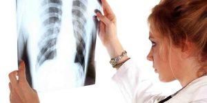 туберкулез правого легкого в фазе распада